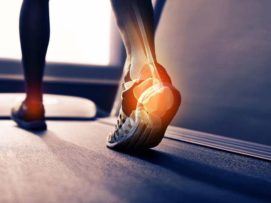 足壓鞋墊可推測足底受力狀況