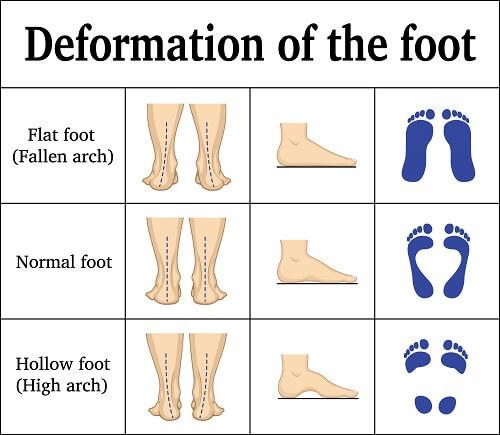 動作控制運動鞋